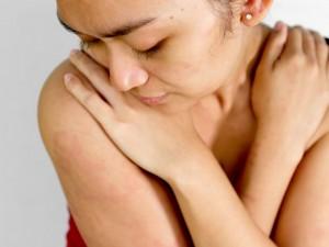 huiduitslag; de belangrijkste veroorzakers op een rij
