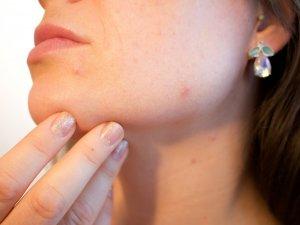 Vrouwen met acne minder last van huidveroudering